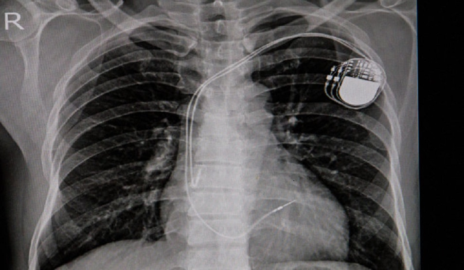 AI can improve X-ray identification of pacemakers in emergencies Photos and graphics subject to third party copyright used with permission or © Imperial College London.